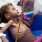 Yémen : 85 000 enfants morts de faim ou de maladie, selon une ONG